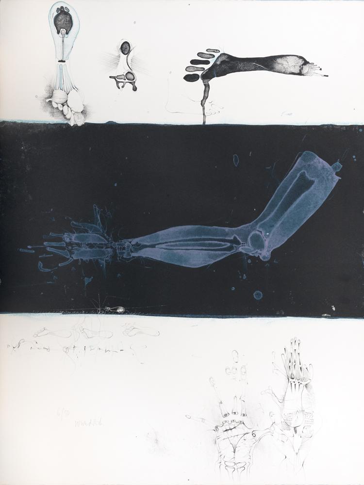 1963 | »Kleine Anatomie«, Blatt 2